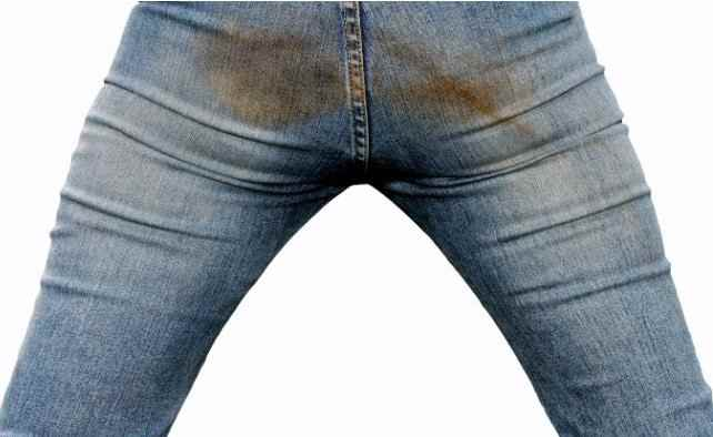 Trucos para quitar manchas de óxido de la ropa